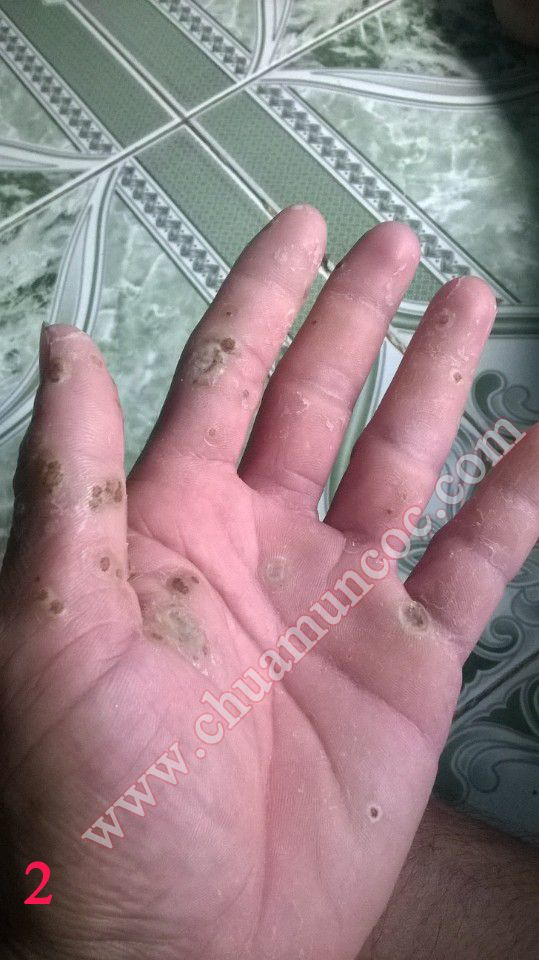 Bàn tay Anh Dương khi mới dùng thuốc