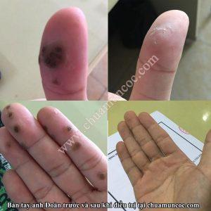 Bàn tay của Anh Đoàn sau nhiều năm bị mụn cóc