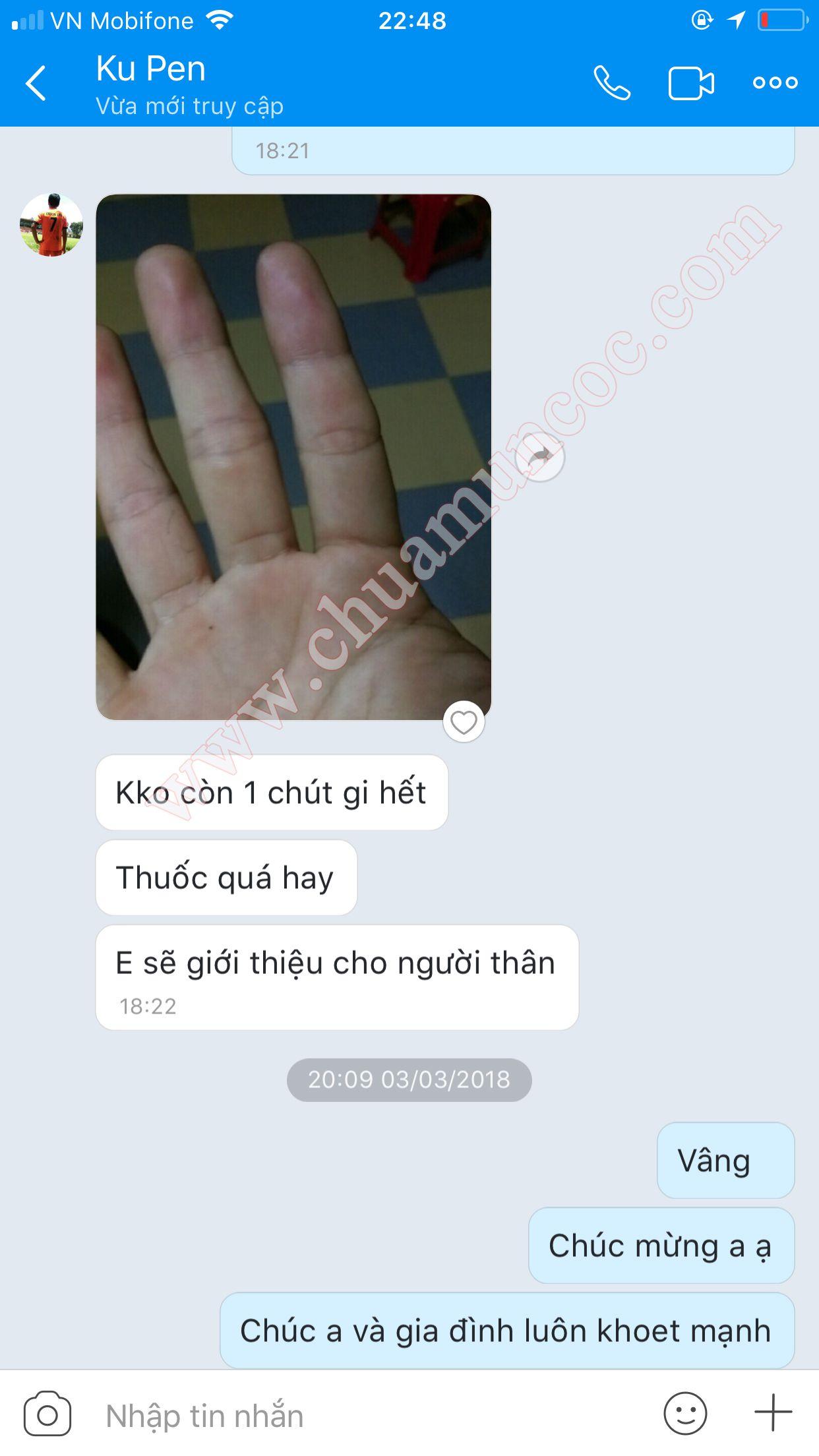 Bàn tay mụn cóc của Ku Pen