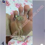 Quá trình điều trị mụn cóc ở bàn chân của Anh Mạnh ở Thái Bình
