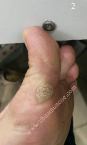 Phản hồi về mụn cóc ở ngón chân của anh Trung
