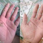 [Tổng Quát] Mụn cóc, mụn cơm – Nguyên nhân và cách phòng tránh
